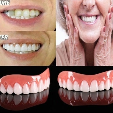 2018 Whitening teeth stickers silicone simulation teeth whitening dentures Brace