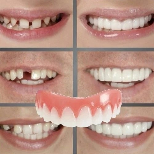 HOT!!!Correction of Teeth Instant smile comfort fit