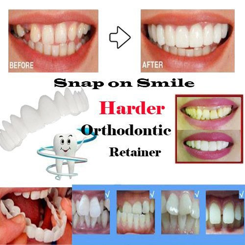 Snap On Smile Instant Perfect Smile One Size Fits Mo