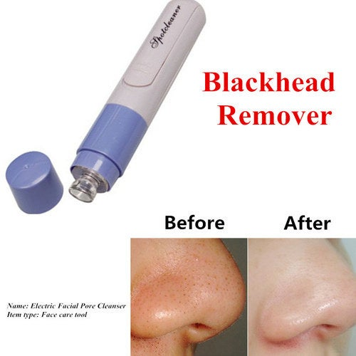 2017 New Facial Pore Cleanser Nose Blackhead Remover Face Care Device