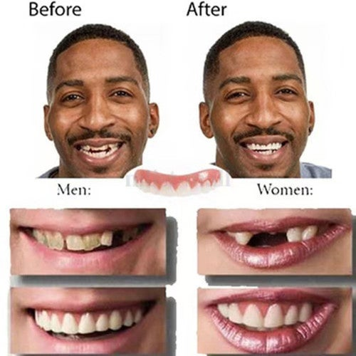 Instant Smile Comfort Teeth Fake Tooth Cover Dental False Natural Snap Perfect