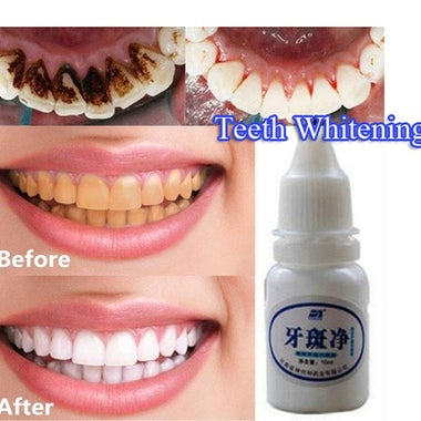 Teeth Whitening Quick Effect to Yellow Dental Plaque Dental Tattoo Black Stained